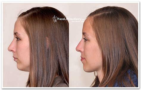 short hair for overbite weak jaw line short hair for overbite weak jaw line convite para