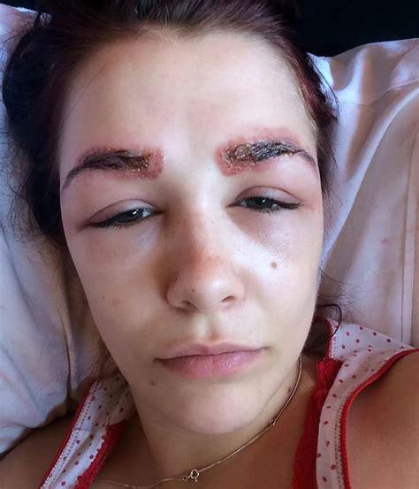 image gallery eyebrow lice