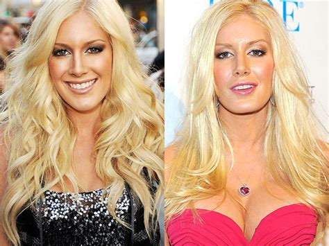 Heidi Montag Plastic Surgery by Carrot Top Plastic Surgery Disasters