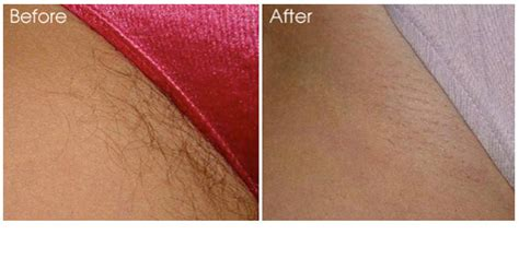physician laser center baltimore laser hair removal
