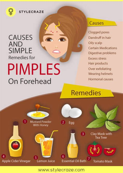 Small Acne Home Remedies Small Acne Home Remedies 28 Images Home Remedies For