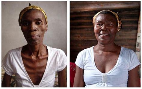 imagenes impactantes del vih sida el efecto l 225 zaro una esperanza en la lucha contra el sida