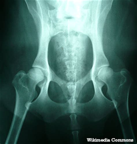 signs of hip dysplasia in golden retrievers hip dysplasia in dogs symptoms and treatment of canine hip problems