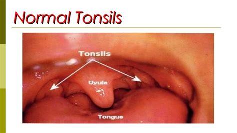 Tongsis Normal 5 tonsillitis