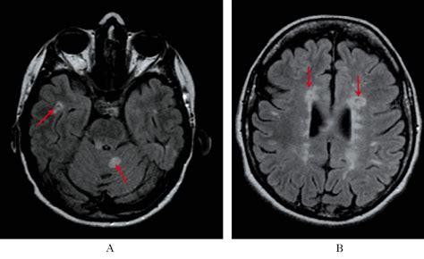 tremore della testa sclerosi multipla in quot dizionario di medicina quot