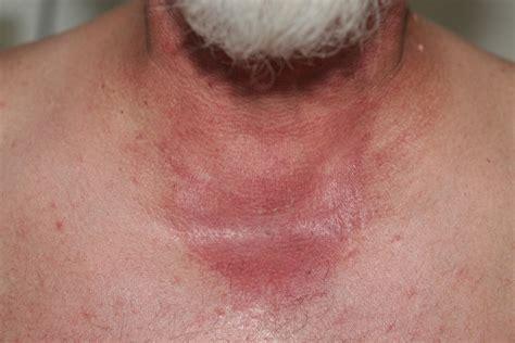a substance that causes sensitivity to hydrochlorothiazide causes rash viagra buy online usa