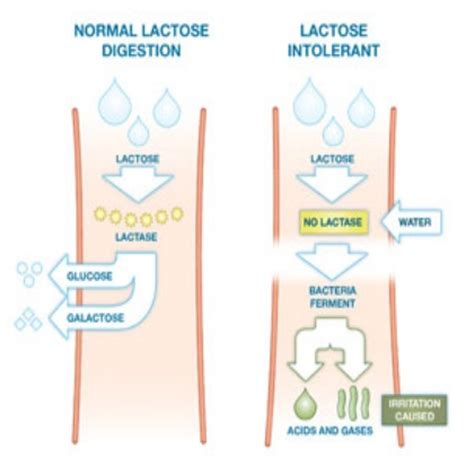 lactose intolerance herbal remedies treatments