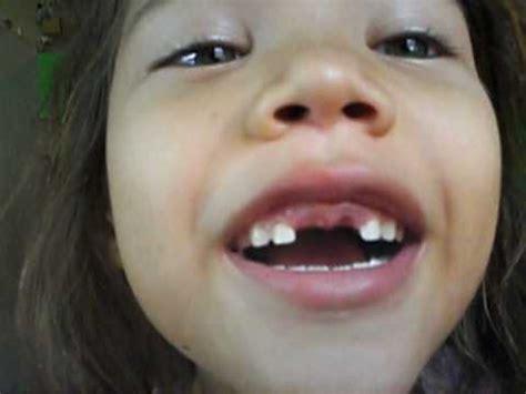 imagenes de negras sin dientes sin dientes la mona mov youtube