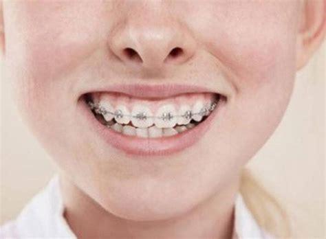 best braces orthodontics treatments r h dental clinic