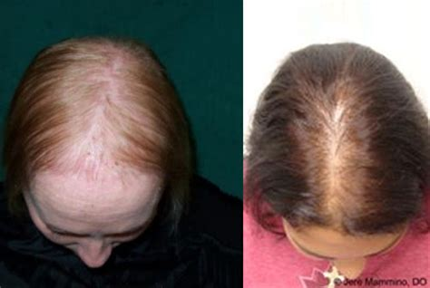 Types Of Hair Loss In Females by Pattern Hair Loss Real Hair Custom Made Wigs
