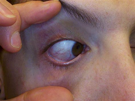 scratched cornea scratched cornea i a i m not a snitch so i m flickr photo