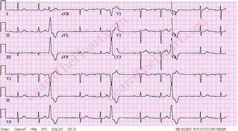 heart ecg pattern ventricular trigeminy ecg exle 1 learntheheart com