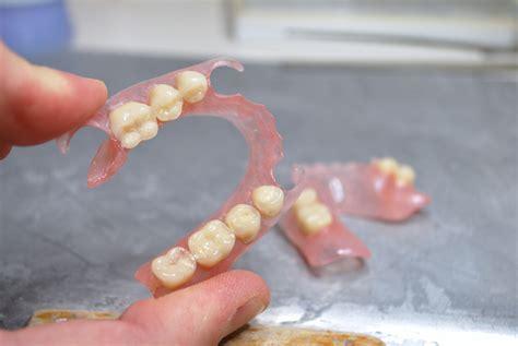 protesi dentarie mobili senza palato protesi mobili flessibili in andrea costantini