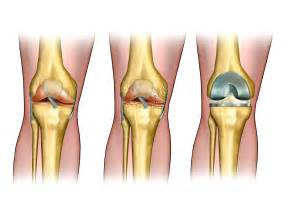 Pain In Back Of Knee After Knee Replacement Surgery by Total Knee Replacement Surgery