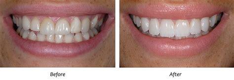 lakeview dental studio dr darshen lingham  benoni