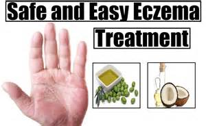 eczema home treatment safe and easy eczema treatment home remedies