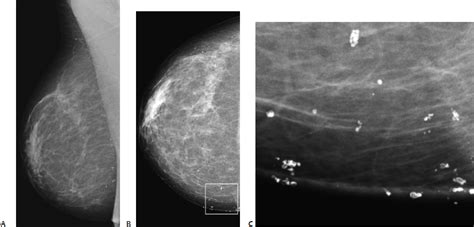 small round breast calcifications small round punctate radiology key