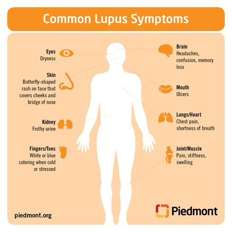 what is lupus