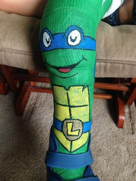 leg cast colors draws mutant turtle on s cast