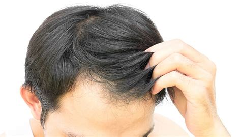 womens haircuts for hairloss fix hair loss with black seed oil