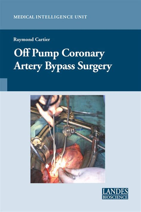 surgery day books coronary artery bypass surgery books pics