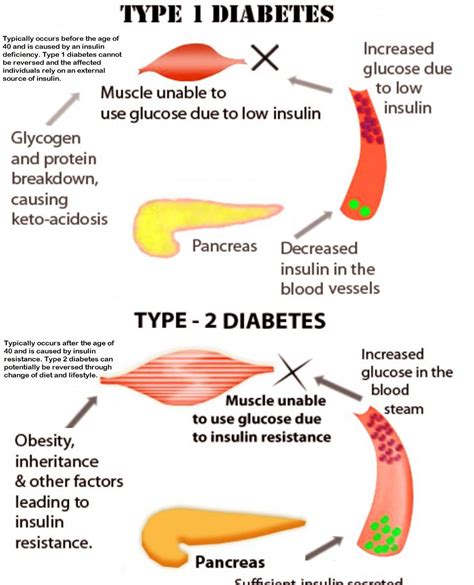 how to a service for diabetes diabetes diagram diabetes chart types of diabetes diabetes explained diabetes