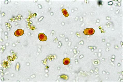 Fig.16. Iodamoeba buetschlii . Colorazione di Lugol. Anche ... Ioda