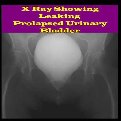 prolapsed bladder prolapse symptoms bladder incontinence prolapse cystometrogram