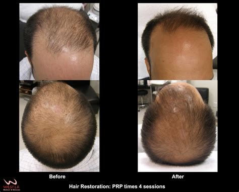 male pattern baldness hair loss rate hair loss men west la hair restoration