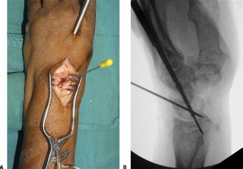 Tokotab Correction Uchio Uc 5023 results of a method of 4 corner arthrodesis using headless compression screws journal of