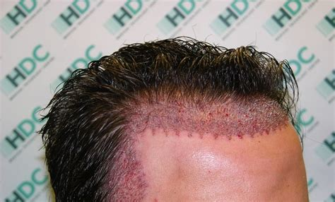 best hair transplant doctors in america top 5 clinics in the us for hair transplant procedures