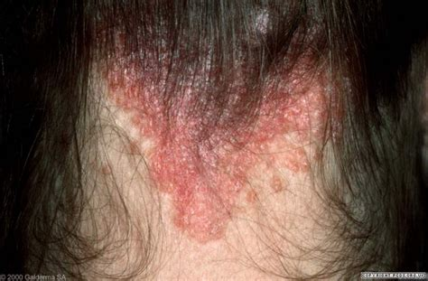 best hair for psoriasis psoriasis scalp psoriasis primary care dermatology