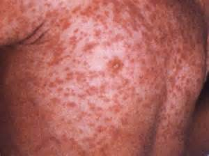 Medical pictures info measles