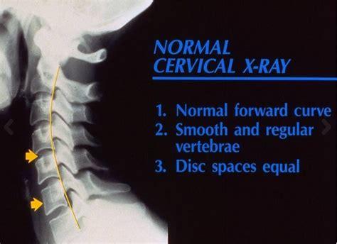 ansia giramenti di testa vertigini sbandamenti capogiri problemi cervicali o altro