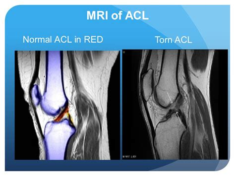Torn Acl Mri Image