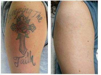 tattoo removal sacramento you d never guess there was a there
