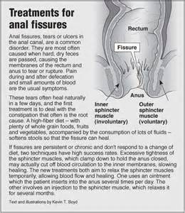 fissures treatments pointfinder health infographics