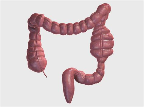 causes and risk factors of colon cancer nursing care plan