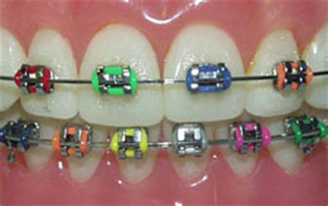 cool colors for braces cool ways to personalize your braces