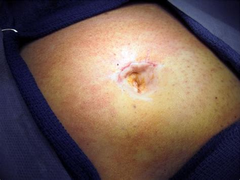 hernia after c section abdominal surgery umbilical hernia after abdominal surgery