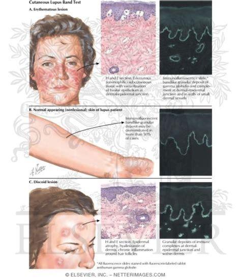 lupus band test cutaneous lupus band test