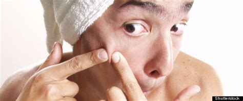 Even Banks Gets Pimples by Pimple Popping Acne Blisters And Scabs 9 Things You