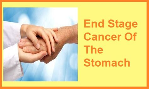 stomach cancer symptoms questionnaire end stage cancer symptoms what to expect