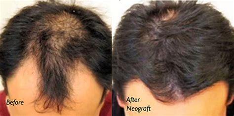 hair transplant center nyc hair transplantations nyc neograft new york ny