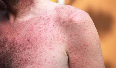 rash home remedy home remedies for heat rash