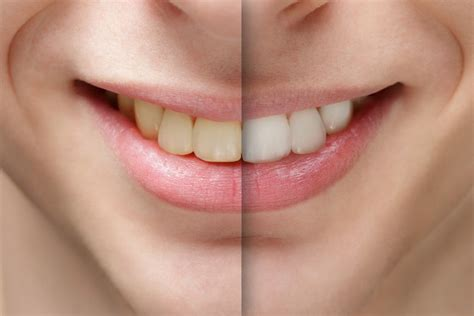 best tooth whitening 10 best whitening strips reviews by an industry expert 2017