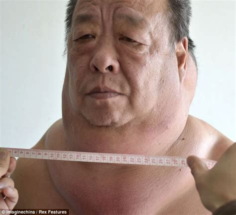 women fat necks the man whose neck is as nearly wide as his shoulders