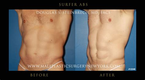 Did Banks Liposuction by Surfer Abs Before And After Gallery