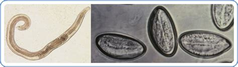 White Worms In Stool In Adults by Cdc Enterobiasis