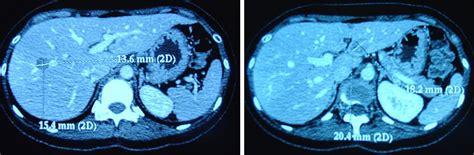 Obat Xeloda setelah mastektomi herceptin tamoxifen xeloda dan